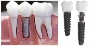 Trồng răng giả vĩnh viễn là gì ?
