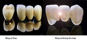 Những ưu điểm và hạn chế của răng sứ titan