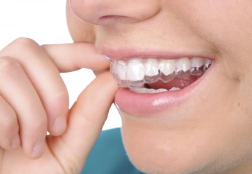 Niềng răng hô có đau không? 1