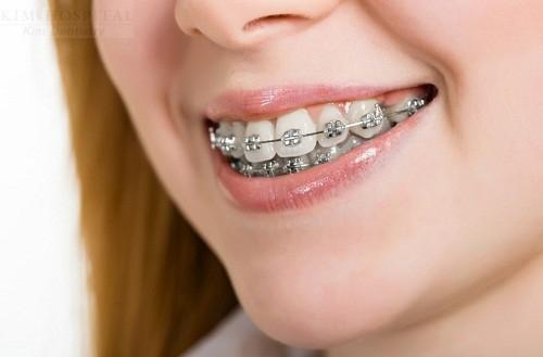 Niềng răng hô có đau không? 2