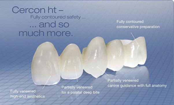 Ưu điểm và nhược điểm của răng sứ Cercon