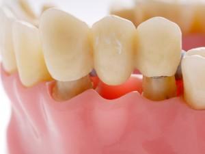 Cấu tạo của chiếc răng giả bằng sứ