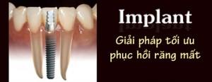 Giải pháp trồng răng nào tốt nhất hiện nay
