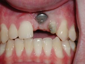 Trồng răng cửa vĩnh viễn giá bao nhiêu? 2