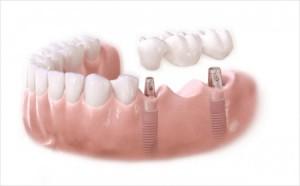 Giải pháp trồng răng giả nào chịu lực tốt nhất?