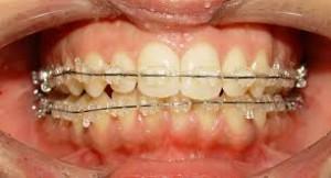 Chi phí niềng răng mọc lệch