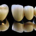 So sánh răng sứ titan với sứ Emax