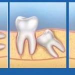 Cách xử lý khi mọc răng khôn