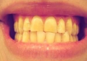 Có bao nhiêu cách khắc phục men răng bị vàng