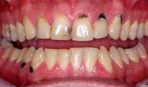 Cách khắc phục răng nhiễm Tetracycline 1