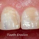 Đôi điều về xói mòn thân răng