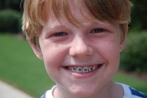 Những điều cần biết khi niềng răng cho trẻ em