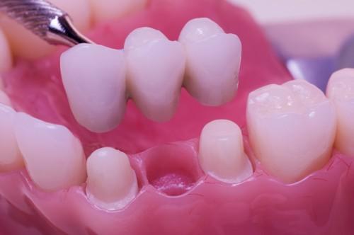 Phục hình cho những chiếc răng bị mất