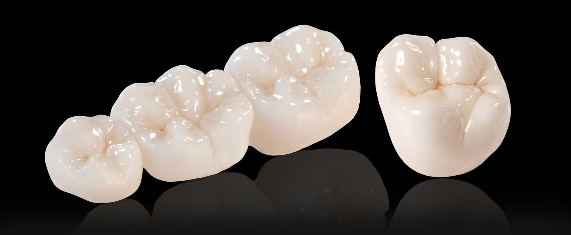 Quy trình làm răng sứ Zirconia
