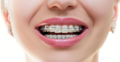 Ưu điểm của niềng răng mắc cài sứ 2