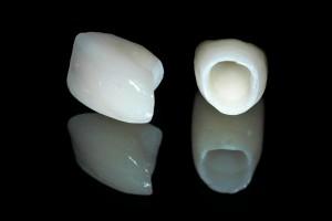Ưu điểm bọc răng toàn sứ với công nghệ CT 5