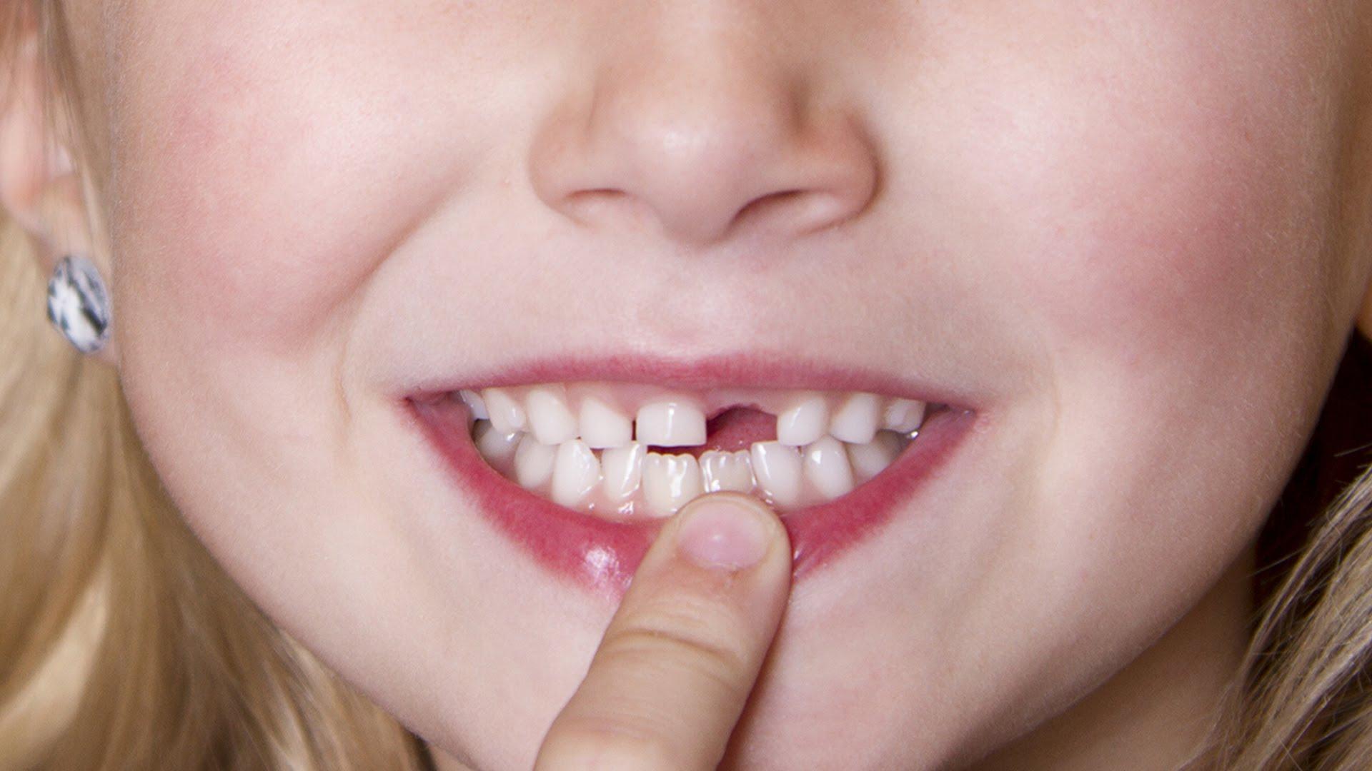 Chỉnh răng thưa trong bao lâu ?
