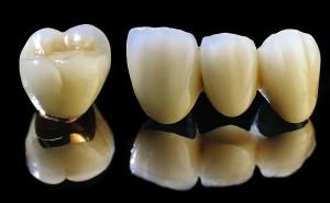Răng sứ titan bảo tồn trong bao lâu ?