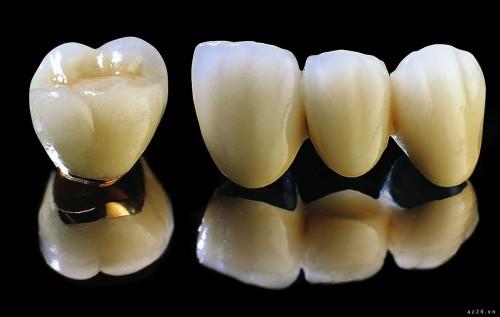 Điểm danh các loại răng giả