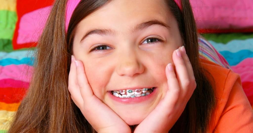 Phương pháp niềng răng cho trẻ em như thế nào? 3