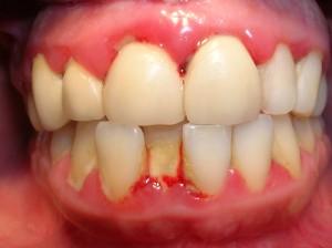 Răng giả cố định