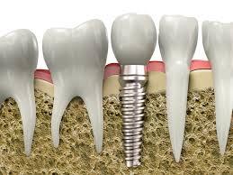 Đơn vị răng implant giá bao nhiêu ?