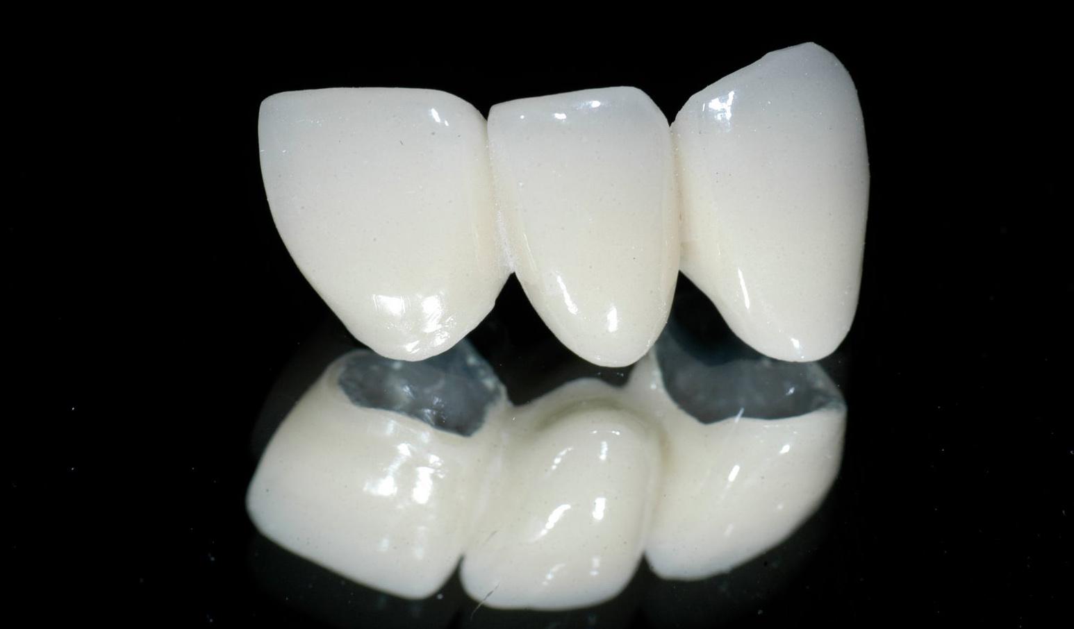 Làm răng giả mất bao nhiêu chi phí ?