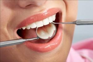 Niềng răng mắc cài kim loại thế hệ mới