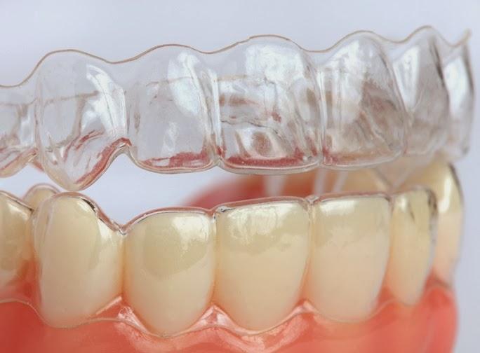 Niềng răng có cần nhổ răng không? 3
