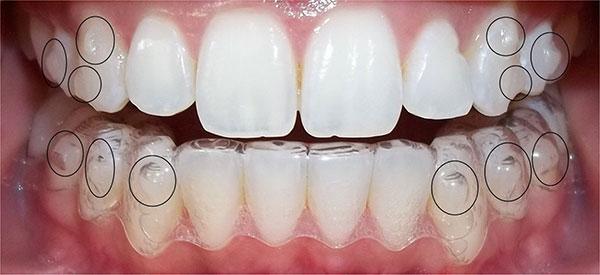 Niềng răng giá bao nhiêu tiền ?