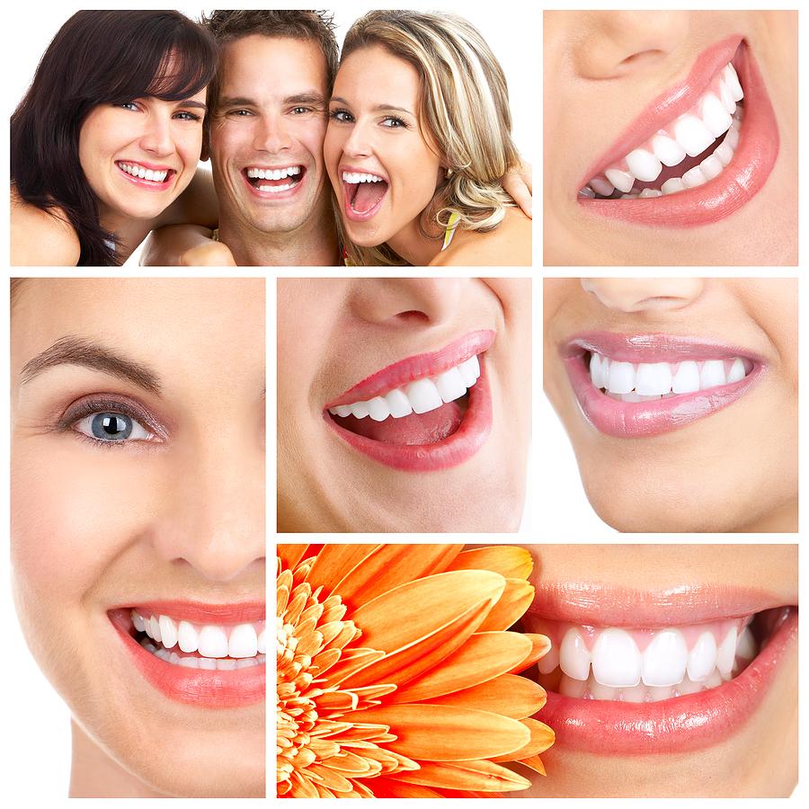 Chi phí niềng răng vô hình Invisalign