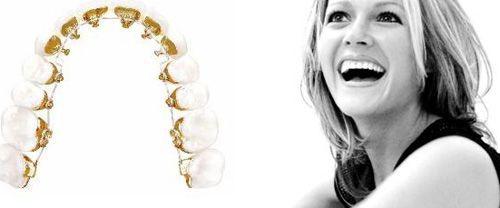 Những câu hỏi hay gặp khi niềng răng