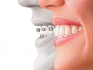 Cách chỉnh răng vẩu bằng niềng răng mắc cài