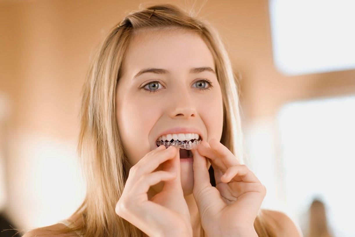 Niềng răng hô hàm dưới không mắc cài