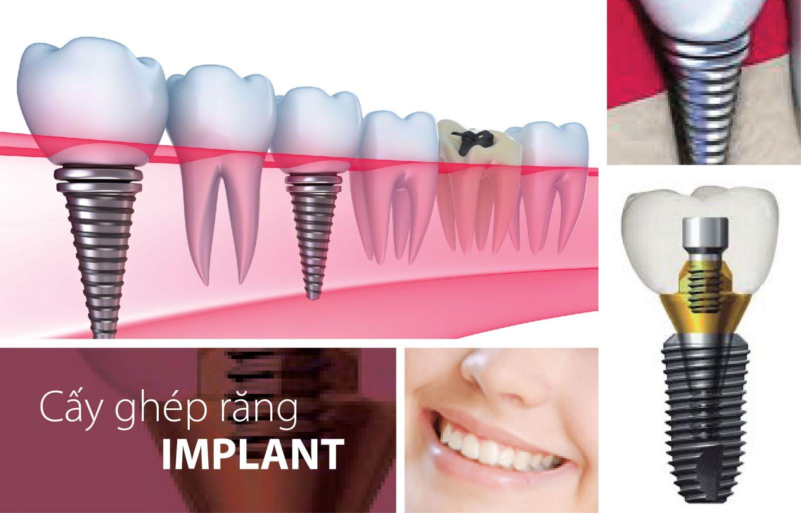 Mức giá cấy ghép răng implant 1