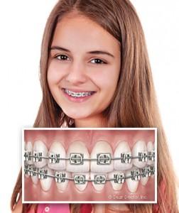 Điều trị hô bằng niềng răng thẩm mỹ
