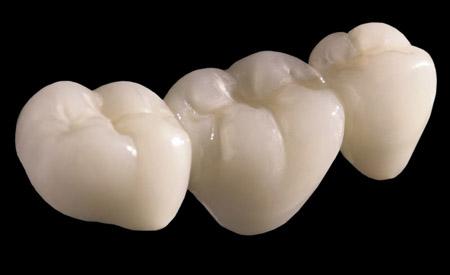 Răng sứ kim loại và không kim loại khác nhau 3