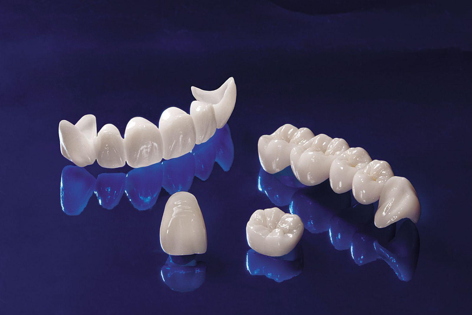 Răng sứ kim loại và không kim loại khác nhau 2