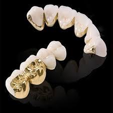 Răng sứ kim loại và không kim loại khác nhau 1