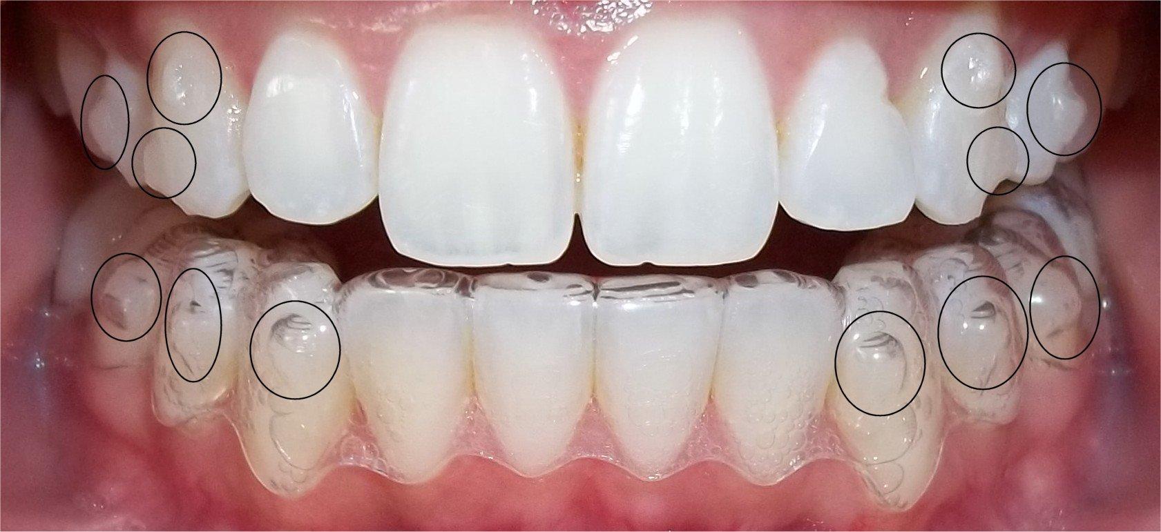 Niềng răng vô hình Invisalign