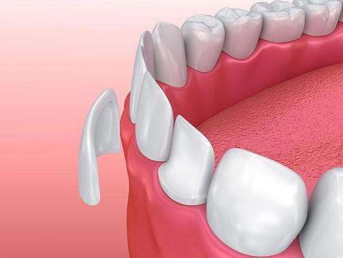 Mặt dán răng sứ Veneer 3D 2
