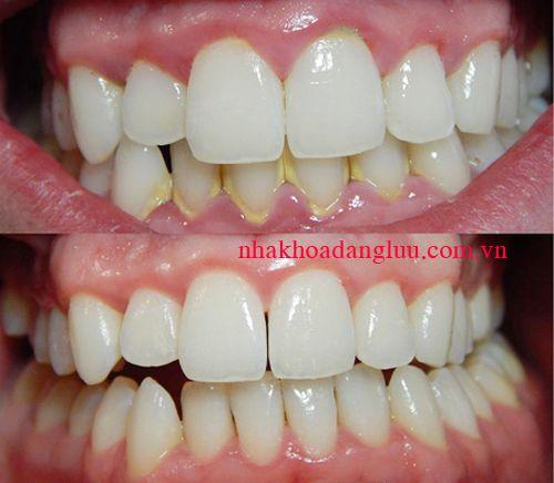 Cạo vôi răng mất bao lâu thời gian? 1