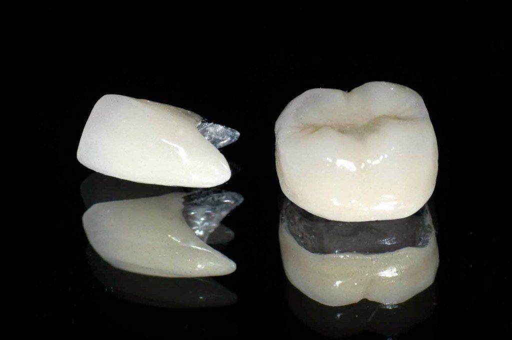 Độ bền của răng sứ thẩm mỹ là bao lâu? 4