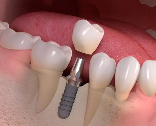 Cắm Implant răng cửa như thế nào? 2