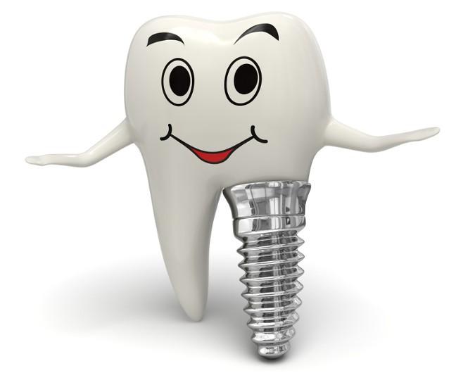 Quá trình cấy ghép Implant răng hàm như thế nào? 3