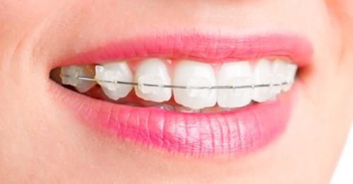 Chi phí niềng răng thưa hết bao nhiêu tiền? 2