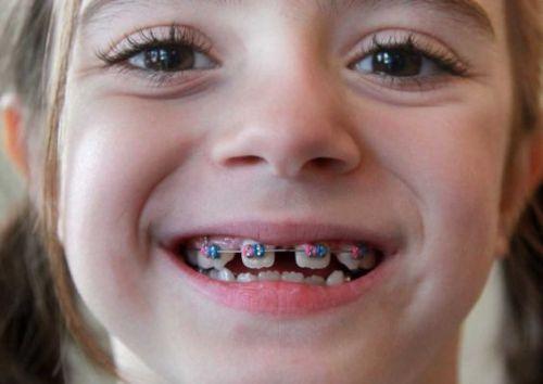 Chi phí niềng răng thưa hết bao nhiêu tiền? 1