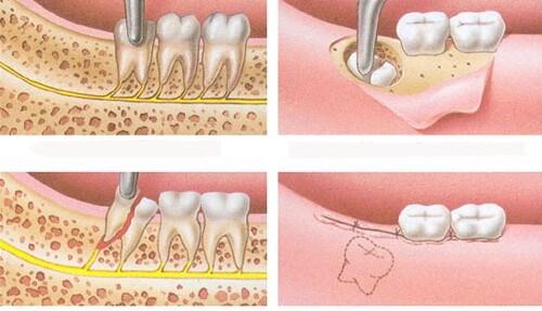 Quy trình nhổ răng khôn bị mọc lệch 3