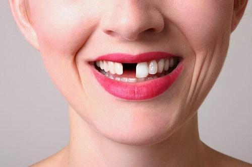 Trồng răng giả cố định giá bao nhiêu tiền? 1