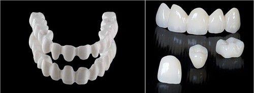 Trồng răng giả giá bao nhiêu tiền? 1